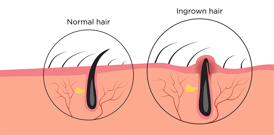 Normal & Ingrown Hair